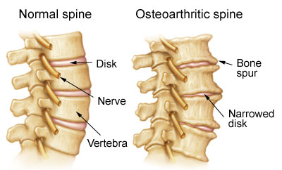 Image result for degenerative arthritis in spine