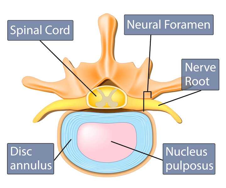 spinal discs